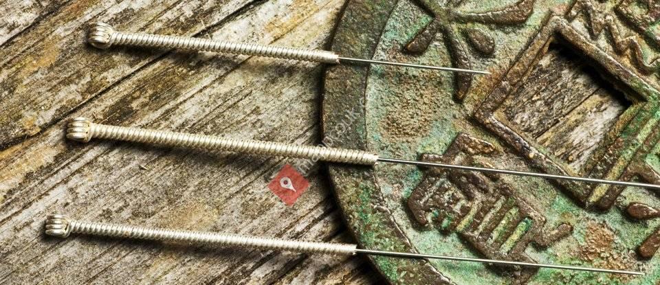Oriental Acupuncture
